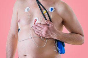 артериальная гипертония, дом престарелых, гериатрический пансионат, невроз, шизофрения, инсульт, инфаркт