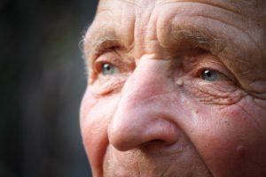 сосудистая деменция, болезнь Альцгеймера, склероз
