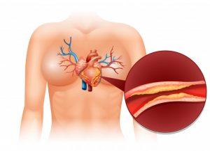 инфаркт, реабилитация после инфаркта, инсульт, бляшки