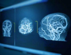плазмаферез, болезнь Альцгеймера, психозы, лечение деменции