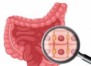 микробиота, клетки, микрофлора, кишечник, бактерии