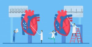атеросклероз, тромб, бляшка, инфаркт, инсульт